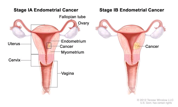 What Every Woman Should Know About Endometrial Cancer